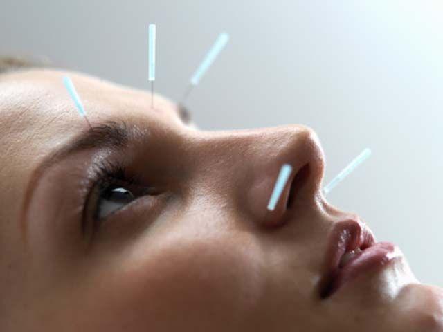 akupunkturla-migrene-elveda.jpg