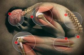 Boyun Fıtığı Tedavisinde Son Teknoloji, atiila kırcelli, boyun fıtığı, srvikal disk protezi, omur, omurga, omurilik, servikal diskektomi, boyun ağrısı, kıkırdak, ağrı, cerrahi